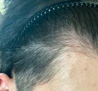 自粛期間で髪の毛が伸びて気づいたのですが、 このような側頭部と頭頂部の境目の部分が髪の毛が薄いのですが、これは薄毛なのでしょうか?それとも誰でも生えていない部分なのでしょうか、まだギリ10代なのでこの年でハゲだと正直1ヶ月は鬱になるとおもいますが、正直な答えが知りたいです。詳しい方や美容師の方、よろしくお願いします。