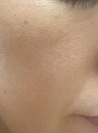頬の化粧のりについて 肌は乾燥肌です  最近ファンデーションをつけると頬の部分が画像のように白くプツプツとファンデーションが浮いてるような感じがします。 色々調べてみたのですが保湿 が足りないと書いてあったので保湿もしっかりと行い馴染んだ後にのせているのですが何が原因なのでしょうか、、?