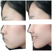 横顔です。 どこを直せば綺麗になりますか?  顎ですか?切った方がいいですか? それとも歯列矯正で治りますか? 人中長いですか? 顎が大きいのが悩みです。 あと口角が下がってる所もです。 アドバイスください  左は真顔で、右は笑った時です