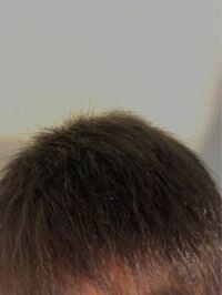 お風呂上がりだったり寝癖を治してドライヤーで乾かすと写真ではわかりにくいのですが凄いチリチリ?というか髪の毛が跳ねます。何が原因なのでしょうか?