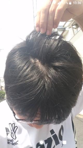 薄毛 画像 20代 頭頂部