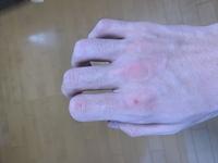 拳立てふせをしたらこのようになったのですがやめた方がいいですかね?