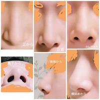 この団子鼻の鼻筋を通すにはどんな整形術が適切ですか?高さはそのままでもよいのですが、鼻筋の幅を目頭から鼻尖まで外国人や女優さんのように細くしたいです。内側法、外側法、鼻中隔延長術、 鼻尖に軟骨移植、鼻骨骨切、プロテーゼ? よろしくお願いします。