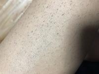 除毛クリームで脱毛して1週間ぐらいで生えてきてきました。現時点ではチクチクするんですが伸びていけばチクチクとゆう感触はなくなるのでしょうか?