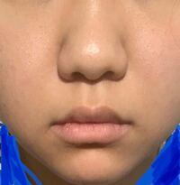 鼻整形を考えてます。 このクソみたいな団子鼻と早くおさらばしたいです。 皮が分厚いのでこれは、切った方が良いのでしょうか? 初めてのため、分かりません。 カウンセリングで理想の鼻を提示したら良いのでしょうか?