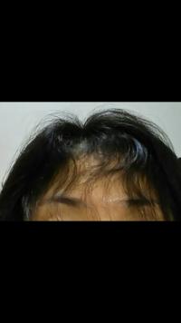 生え際だけ重度の天パで悩んでいる40代女です。 縮毛矯正が昔のようにかかりません。  昔は縮毛矯正さえかければどんな髪もまっくずサラサラ(ハビット、リペア、リシオ等)だったのに、今は髪に優しいまっすぐすぎ...