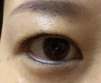 まぶたの脂肪取りについて。 私は二重瞼なのですが、瞼が厚い?重い?のか、パッチリ二重ではありません。 そこで、まぶたの脂肪取りを考えているのですが、湘南さんか東京中央(TCB)さんのど ちらかで迷ってい...