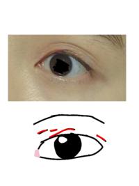 一重から奥二重に。それで平行?二重になりかけなのですが、赤い↓線が邪魔です。 どうしたら消えますか?多分奥二重の名残です。自分はあまり綺麗な二重瞼ではありません 。 アイテープとかで無くなる効果ありますか? またこの瞼は皆さんから見てどう思いますか?変ですか? ご回答よろしくお願い致します。