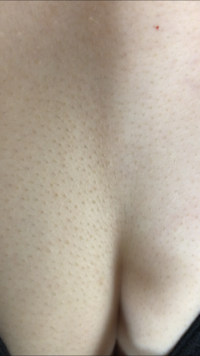 谷間 湿疹 胸