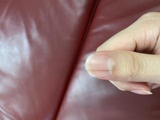 皮膚がん,ところメラノーマ,ほくろ,黒い線,可能性,皮膚科,根元