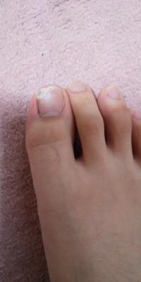 爪 が 割れ た 処置