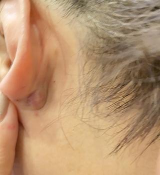 と 腫れ 耳 痛い 後ろ の 触る
