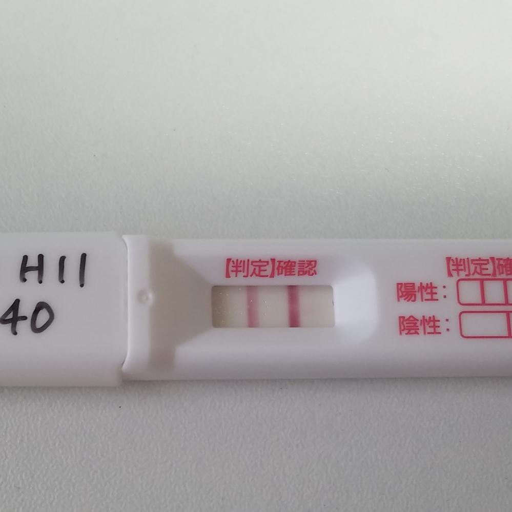 いつから 後 性行為 管 造影 卵 検査
