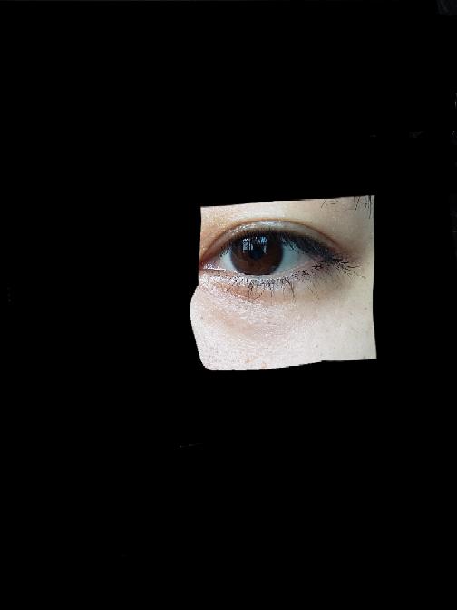 目の下のたるみは手術で脂肪除去みたいなのをしないと治らないのでしょうか? 30歳です。