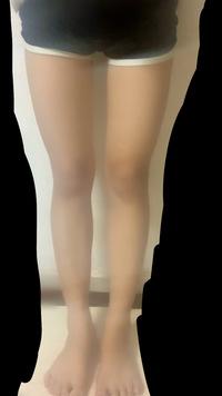 写真のような脚は骨格ウェーブですか? 上半身は写っていないですが猫背ぎみでガリガリに見えるのですが、下半身は骨盤あたりが大きく太ももも太いです。