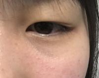 お見苦しい写真すみません。 このような腫れぼったい一重瞼でも埋没3点どめなどできれいな二重にできるのでしょうか??  蒙古襞がすごくて、マッサージをしても浮腫むし寝て起きるとぱんぱ んになってることもあるので心配です、、