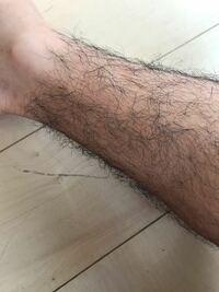 中学男子なのですが、自分の足はこのくらい毛が凄いです。 百均の脱毛クリームで綺麗に消えますか? できれば安く買いたいのでお勧めの教えて欲しいです