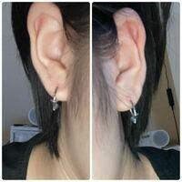 ピアスが左右非対称になってる気がするんですが、どう思いますか?開け直した方がいいですかね?写真から見て左側が上にあけすぎたかな?と思いました。右側の耳三角形にしたら目立ちませんかね?あとイボのようなも のはなんですか?