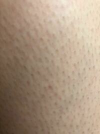 毛穴の写真があるので閲覧注意です ずっとカミソリで剃って過ごしていたらいつのまに毛穴がボツボツになってしまいました泣 腕は大丈夫なのですが足がやばいです、、 埋没毛と毛穴の炎症の治し方を教えていただきたいです! また、効くクリームなどありましたら教えて欲しいです、、(ケアノキュアなど) よろしくお願いいたします!
