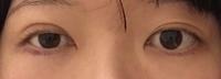 二重整形失敗したかもしれません。 昔から右目のみ一重でした。 二重の左目も安定してなくて毎日幅が少しづつ違うので左目よりも若干広めに合わせ右目だけを埋没三点留めして貰いました。 写 真撮った日は術後...