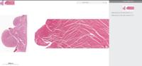 組織学についての質問です  histology guideというサイトでバーチャルスライドを用いて自主勉強しておりlook alikeの項目で分からないところがありました。 右心房と左心室の画像が並べられており両者の違いか...