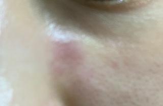 方 顔 ステロイド 副作用 治し