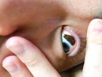 不妊治療してやっと子供を授かり妊娠中なのですが、旦那の兄弟に斜視がいて、 旦那には白目部分にシミのようなものがあります。 遺伝してしまうのでしょうか? 写真は旦那の目です。 グロ注意!!