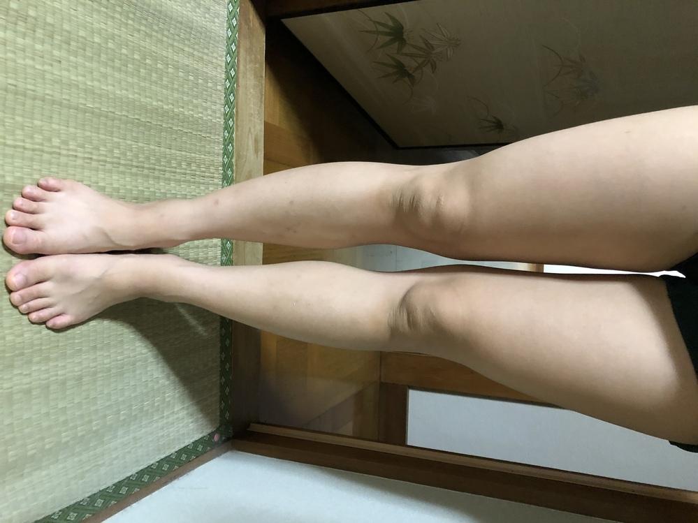 この足は太いですか? ししゃも足でしょうか? 歩き方のみ改善したいのですが どのようにみなさん歩かれてますか? 歩き方で、ししゃも足になるそうなんです。 整骨院に3ヶ月通い、O脚 が治ったと...