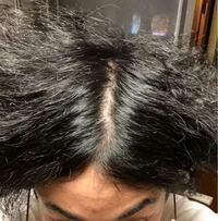 これってセンター分けしてこれって薄毛きてますか? 天パで髪のボリュームが出ないのですがどうしたら回復しますか?