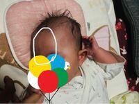 生後3ヶ月の娘のおでこに、縦で盛り上がっている線があります。 ネットで調べたら、三角頭蓋と出てきたのですが心配です。  どなたか分かる方いましたら教えてください。