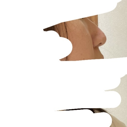"""コンプレックスの鼻についての質問です。 私は昔から顔のパーツの中でも特に、 """"鼻"""" がコンプレックスです。 全体的に鼻が大くて小鼻も横に広くて、 最近は人と比べては、 「"""