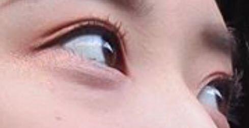 この目は天然二重(無整形)だと思いますか?
