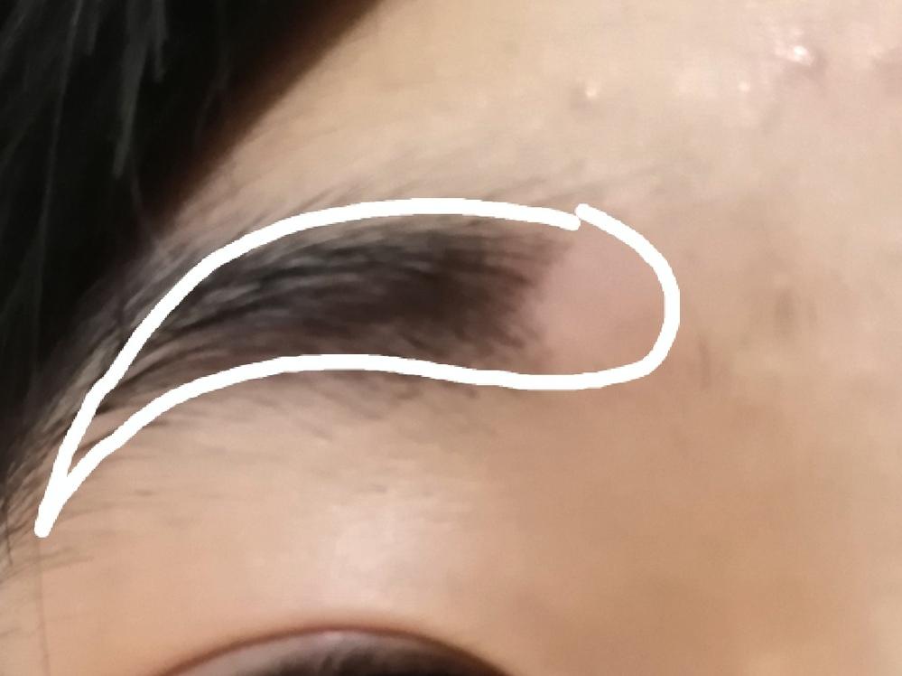 私は眉毛や髪の毛を抜く癖があります 基本的にはいつでも抜いてしまいます するとこのようになっていました (白枠が元はあった眉毛です) 意識しても治りません どうしたらやめられるでしょうか