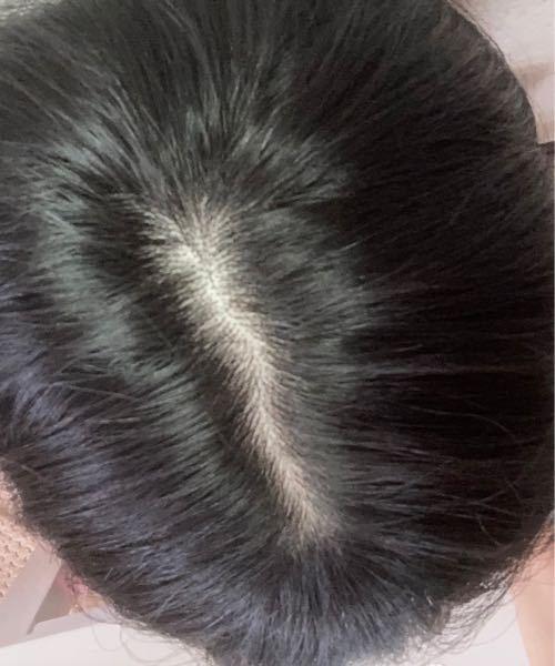 20代の女です。 最近抜け毛が増え、分け目の部分がとても目立つようになってきたのですが、これってFAGAというやつでしょうか?? 病院に行って治療してもらう方がいいと思いますか…?放っておいたら...
