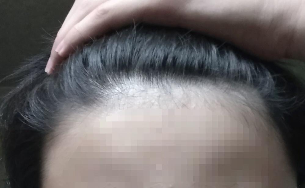 中学生です、 これってハゲてますか?ただ毛が細いだけですか?