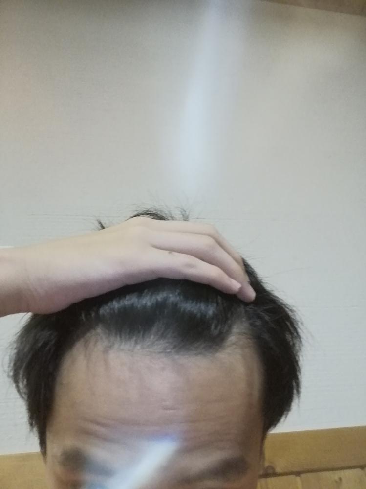 高校2年生です。禿げてますか? もし禿げていた場合どーすればいいのか教えてくれたら嬉しいです