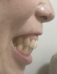 正面の歯並びは綺麗なのですが口元が少し出ており気になります。 歯列矯正で口元を引っ込めることはできますか? 外科手術でなければ難しいですか?