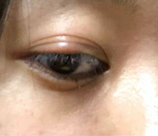 腫れる 片目 まぶた が 突然