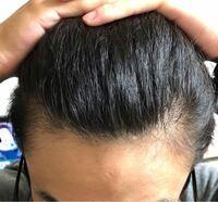 初期 脱毛 プロペシア 【クリニック監修】「プロペシアで初期脱毛」は本当? その真相は?|薄毛・AGA治療のあれこれ、Dクリニック福岡(旧城西クリニック福岡)の頭髪コラム