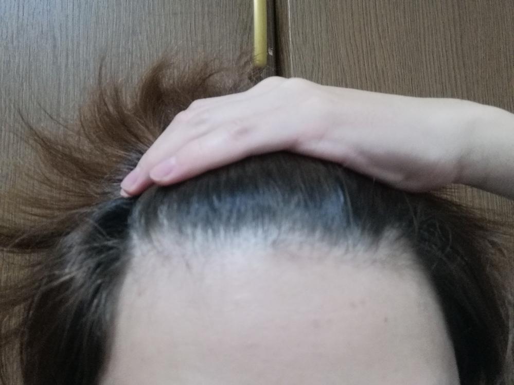19歳です、最近抜け毛に悩んでいるのですがこの生え際はハゲ進行中でしょうか?判定よろしくお願いします。 あとハゲであれば対処法(出来ればお金がかからない)方法を教えていただけると助かります。