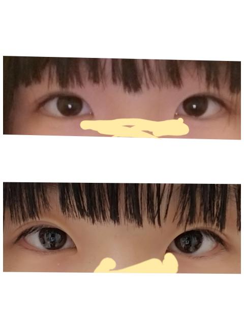 目に悩んでいます、、 これは離れ目&つり目ですかね? それとも蒙古襞や瞼の厚みでそう見えるだけですか? 目頭切開と埋没で多少はマシに見えますか??