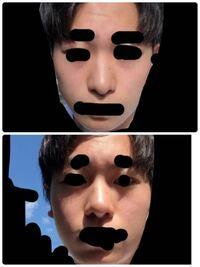 団子鼻で鼻筋がないのですが鼻筋を通すにはどのような整形がありますか