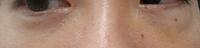 目の下の脱脂経験者、詳しい方教えて下さい。 先週目の下の脱脂を行って数日後の写真です 元々膨らみの強さに左右差があり閲覧者から見て右側の膨らみが 脱脂後もあるように見えます。 ※全体的には以前よりスッキリしました  ①一か月ぐらいで右側の膨らみが消えて均等になる可能性はありますか? ②膨らみの強い右側だけの再脱脂は可能なんですか?  または腫れが落ち着いたら脂肪注入で左右差は改善しますか? ...