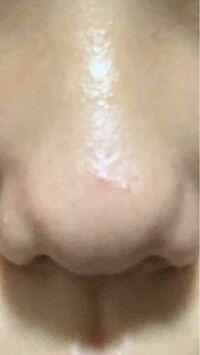だんご鼻とニンニク鼻です。。 この横の広がりと2本の線??を消す方法ってありますか?メイク以外で  整形したいです(┯_┯)(┯_┯)(┯_┯)   皆さんから見てこの鼻どう思いますか?