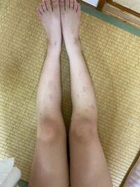 身長146cmです。 何キロの足に見えますか? また、足が太いのでどうやったら太せますか?