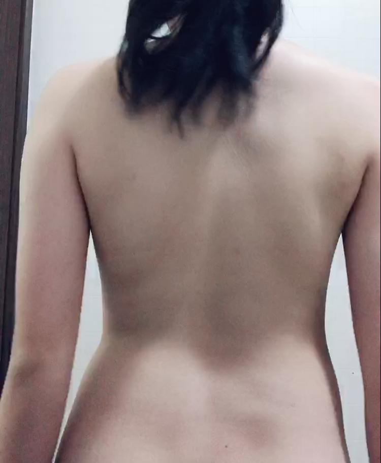 閲覧注意です。 痩せなくて困ってます。すぐ太ってしまい困っています。 この後ろ姿は骨盤が歪んでしまっているのでしょうか?? 歪んでいるとしたらどちらが歪んでいるのか教えてもらいたいです。