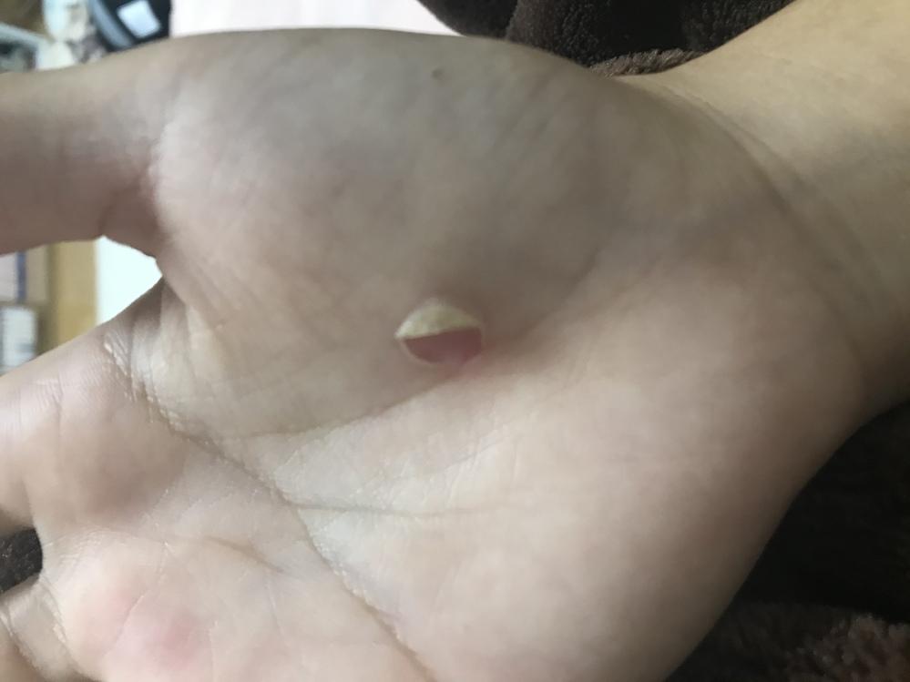 先日硬式テニスの県大会をしていたら、ラリーが続きすぎたせい&グリップを強く握ってしまったせいか、 初めは赤くグリップの握り跡が出てきて、どんどん皮膚がふやけるような柔らかくなり最終的に剥けました。 こ