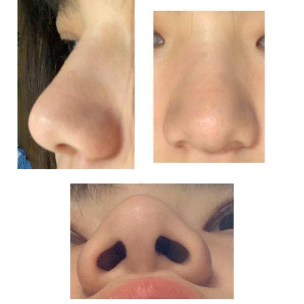 鼻がでかいのが悩みです。 の鼻の形の名前はなんですか? マッサージをしているのですが、中々続かなくて 鼻を全体的に小さくする道具?を探しています。