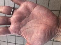 手相占いお願いします。 主に金運についてです。 自己破産しないでしょうか? あと、いつの間にかできていた左手のひらの真ん中のはホクロ?かゴミが中に入り込んでしまった?のかはわかりませんが福つかみでしょうか? 右手のひらの親指の付け根あたりにも同じようなものがあります。