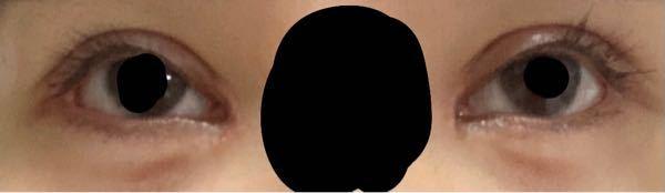 これは整形失敗でしょうか?20歳女性です 一ヶ月前に目頭切開(修正)+二重全切開(修正)+目じり切開+涙袋ヒアルロン酸注入をしました。 目付きがとにかくおかしいくて不自然です。目のカーブが目頭から黒目の上部分にかけてキツく、どこをさがしても私のような症例はないのでとても不安です。 先生は腫れているので時期治まると仰っていましたが、目頭付近の二重幅が広くめつきがわるくみえてしまうのがどうしても気になります。 治す方法はあるのでしょうか、また修正するとしたら何をしたらいいのか、どの程度の期間をあければよいか教えて欲しいです